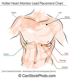 Holter Heart Monitor Lead Placement Chart - An image of a...