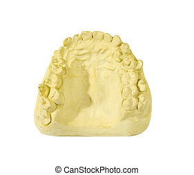 gypsum model with 25 upper teeth on a white background