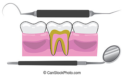 Dentist Tools - An image of gums, teeth, and dentist tools.