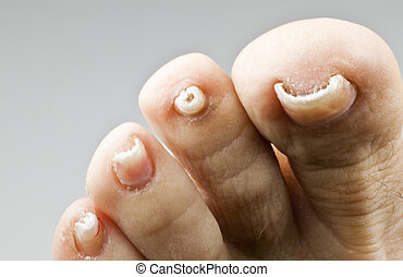 Nails with fungal disease - Foot nails damaged by a fungal...