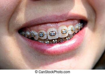 young woman smile with bracket - best young woman smile with...