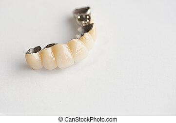 bridge denture - bridge, the fixed type denture...