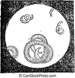 Trichinella or trichina worms, vintage engraving. -...