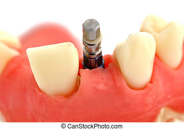 jaw and implant - model of jaw with implant on a white...