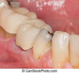 Macro image of filled teeth - Close up macro shot of...