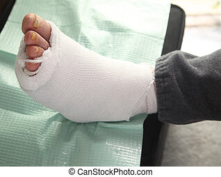 diabetic foot injury - bandaged infected foot of a diabetic