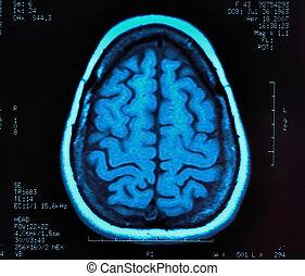 Brain MRI - magnetic resonance image (MRI) of the brain