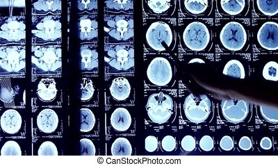 Doctors study skull brain X-ray film for analysis.