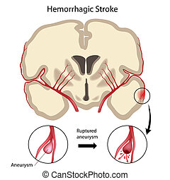 Brain hemorrhagic stroke, eps10 - Cross section of the brain...