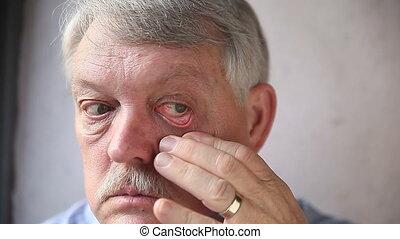 man checks his bloodshot eyes