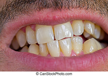 caucasian man teeth - caucasian man mouth and irregular...
