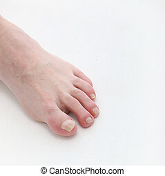 Psoriasis of the toenails with text space - square