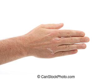 Psoriasis, uñas, debajo, Manos