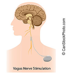 Vagus nerve stimulation therapy used as treatment for...
