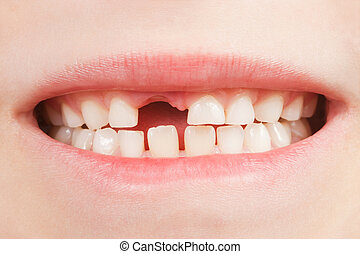 Child with a tooth space - Closeup of the opened mouth of a...