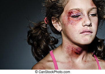 Domestic violence - Injured child posing as victim of...
