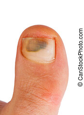 big toe - closeup of caucasian woman big toe with bruise...