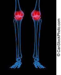 knee joint - 3d X-Ray illustration of Human knee in red on...