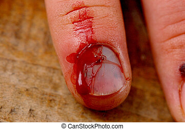 Injured finger and nail bleeding.