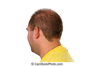 Young man with hair problem