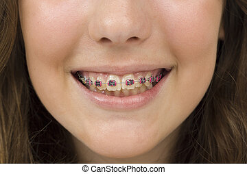 smile of a young woman with dentures - Bright mouth with...