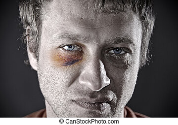 Bruised eye. - Man with an injured eye. Closeup, toned.