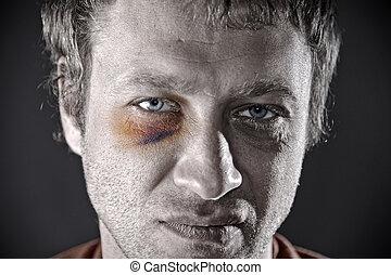 Bruised eye. - Man with an injured eye. Closeup, toned.