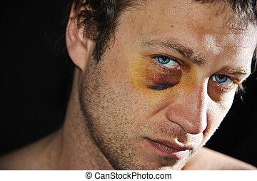 Bruised eye. - Man with an injured eye. Closeup.