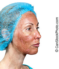 Cosmetology. Skin condition after chemical peeling TCA. The...