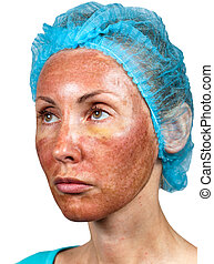Cosmetology Skin condition after chemical peeling TCA...