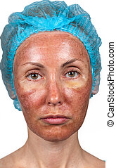 Cosmetology Skin condition after chemical peeling TCA person...