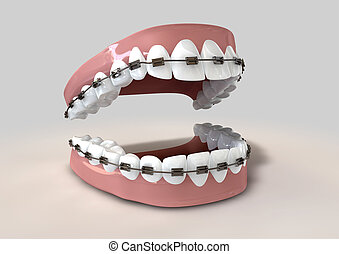Teeth Fitted With Braces - A parted set of human teeth with...
