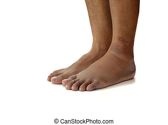 ankle sprain - Left ankle sprain swelling from trauma on...
