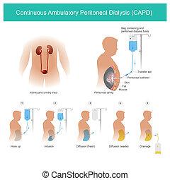 capd, peritoneal, kontinuierlich, ambulatory, dialyse