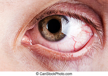capillaire, oeil, sanguine, humain