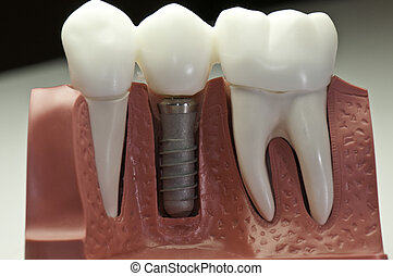 capped, dental, implantat, modell