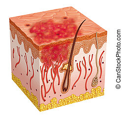 Carcinoma - reddening of the skin due to carcinoma