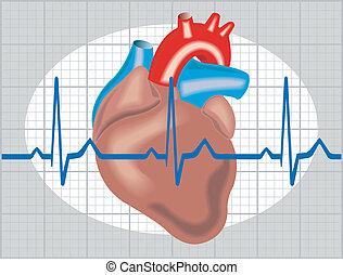 Schematic illustration of cardiac arrhythmia