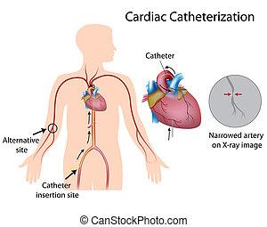 Cardiac catheterization procedure for diagnosis of heart attack