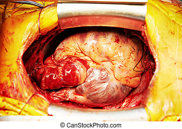 Cardiac surgery heart transplantation - human heart during...