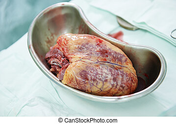 Cardiac surgery heart transplantation - Used human heart...