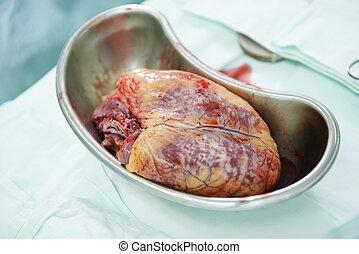 Cardiac surgery heart transplantation - Used human heart...
