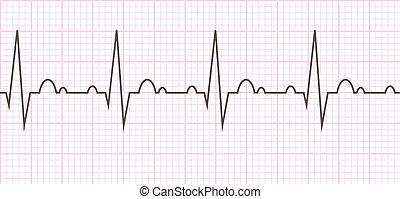 cardiaco, cuore, beat., cardiogram., ciclo