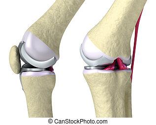 cardine, ginocchio, titanio, articolazione