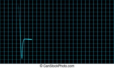Cardiogram cardiograph oscilloscope screen loop