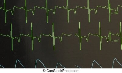 Cardiogram of rhythm of heart and pulse image on monitor...