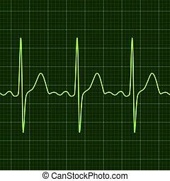 Cardiogram on digital device monitor. Electrocardiogram. Graphic representation of heart work . Health and medicine.