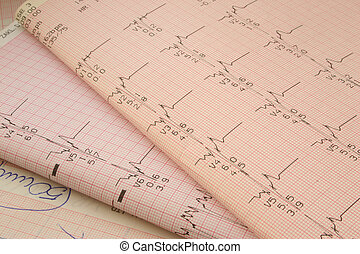 cardiological test r