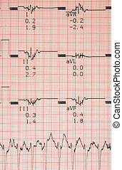cardiological tests results, photo contains no protected...