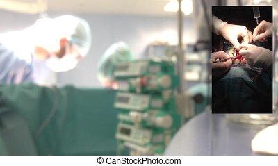 cardiosurgery, heart., battement
